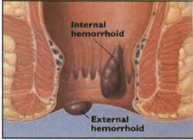 hemorrhoid